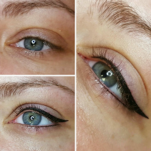 Eye line Micropigmentation